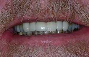 Closeup of teeth following treatment for advanced decay