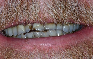 Closeup of severely decayed and discolored teeth