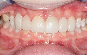 Closeup of bright white smile with no more staining