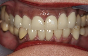 Beautiful smile after damaged teeth were repaired