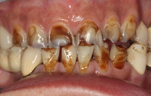 Teeth that are seriously decayed and cracked