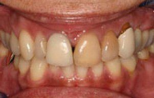 Closeup of teeth with severely discolored right front teeth