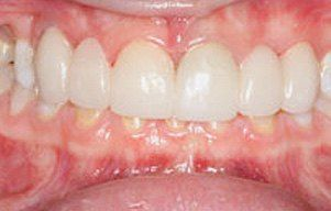 Closeup of beautifully transformed smile
