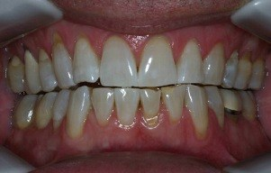 Closeup of white smile following treatment