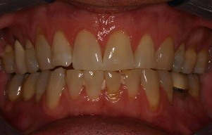 Closeup of severely yellowed teeth
