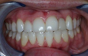 Closeup of smile with flawless tooth replacement