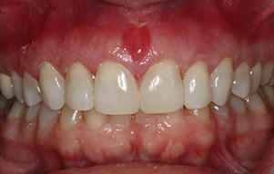 Closeup of smile after gap between teeth was closed