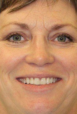 Patient with a flawlessly repaired, gap-free smile